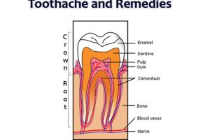Toothache Remedies